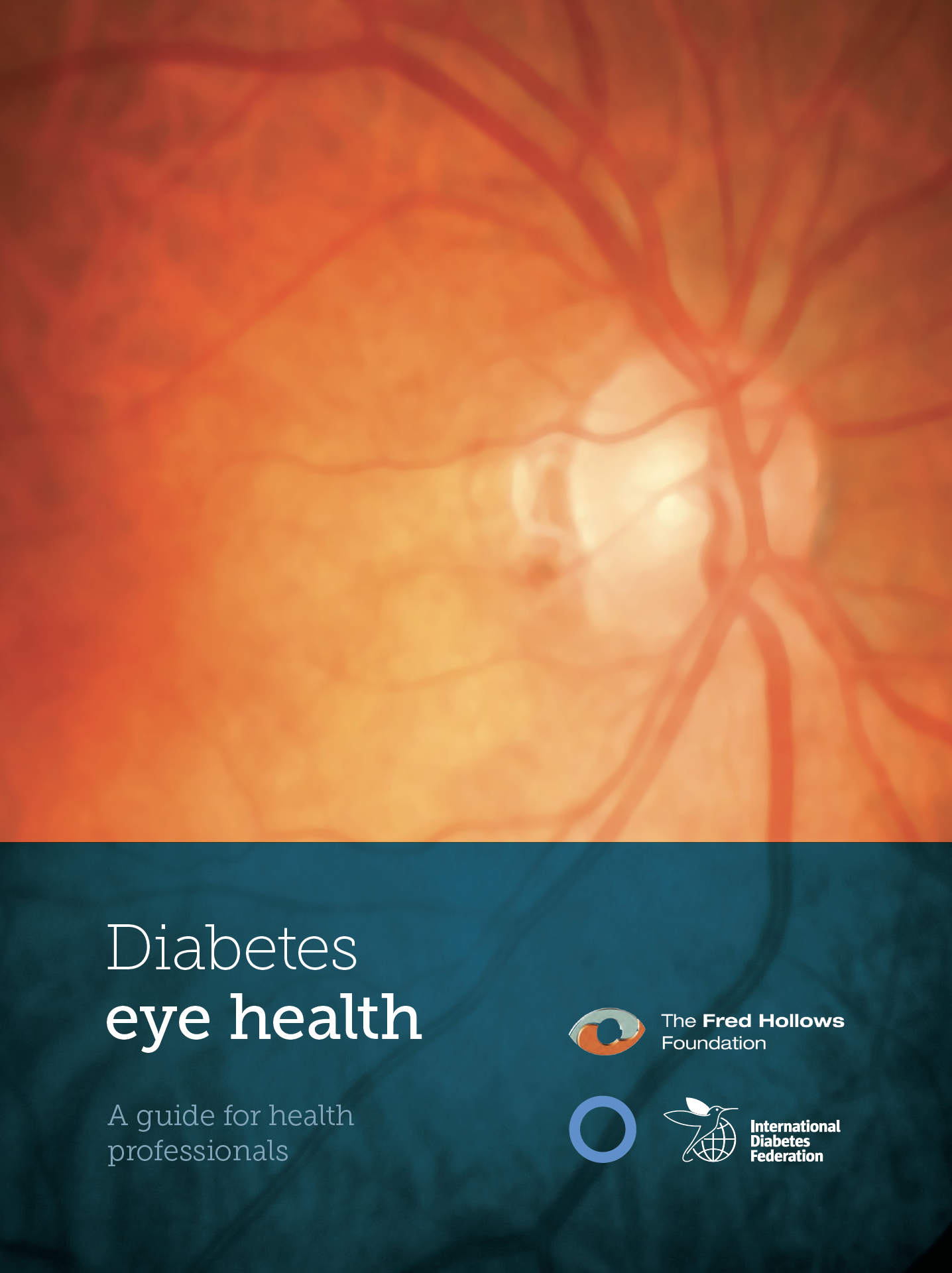 Diabetes-eye-health-report-image