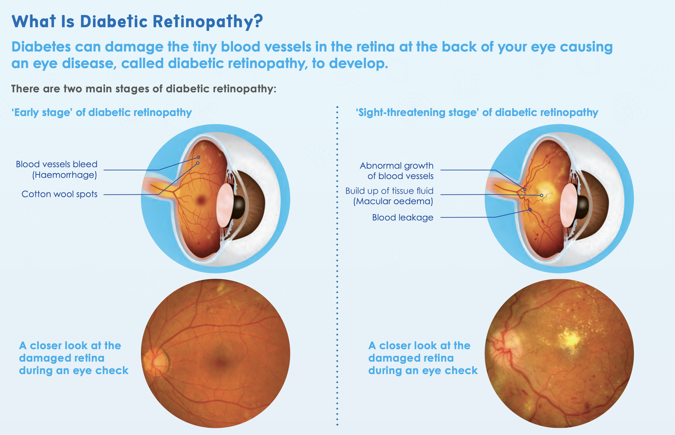 chart showing images of Diabetic retinopathy