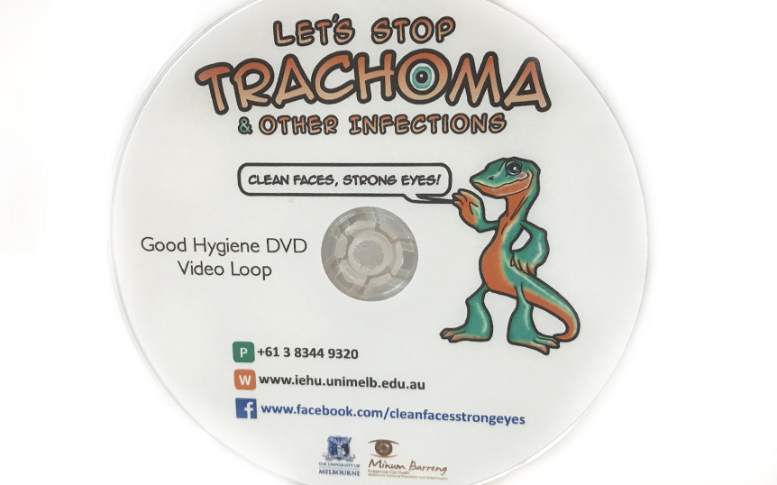2017 DVD loop