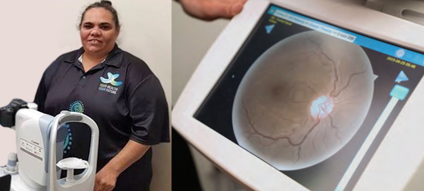 emma with a retinal camera, and a photo of the back of an eye